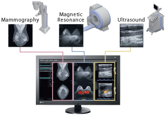 FDA 510(k) Clearance Multi-Modality Image Display
