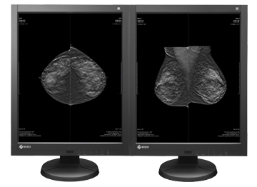 Breast Tomosynthesis with Mammography