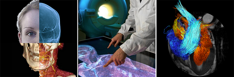 Center for Medical Image Science and Visualization CMIV
