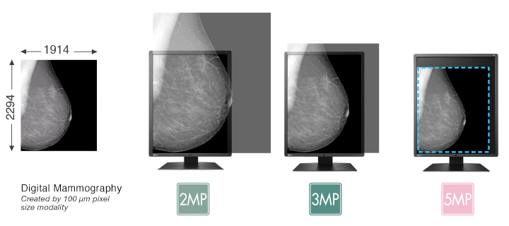 View Mammography Images Clearly