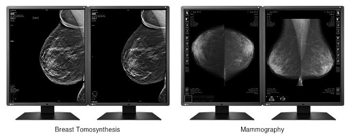 Optimum Breast Screening Monitor