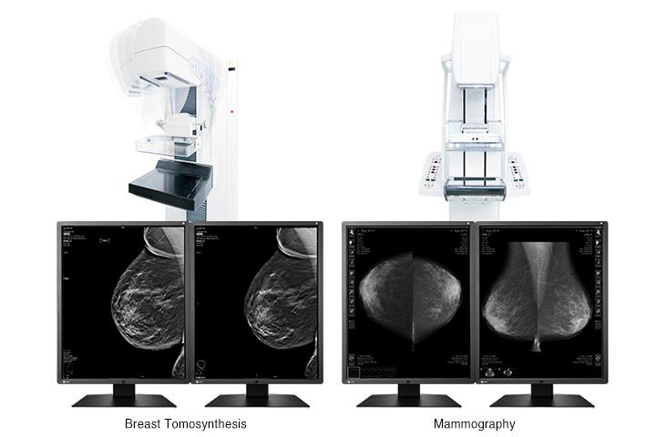 gx550_tomosynthesis_mammography_en.jpg