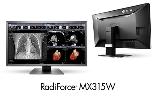 RadiForce MX315W