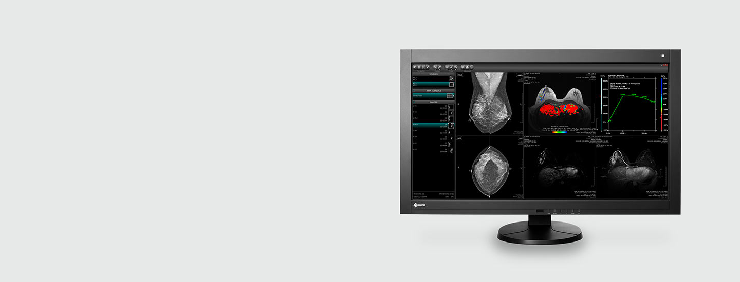 Color Mammography Monitor - Radiforce RX850