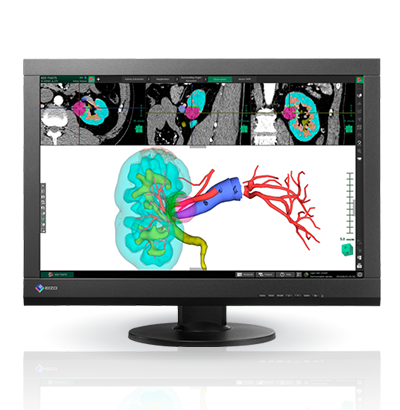 Clinical Review: Superior Cost Performance for Viewing Patient Charts with Medical Images