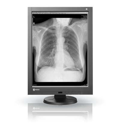 Diagnostic Displays – PACS: Exceptionally Accurate and Stable Image Display
