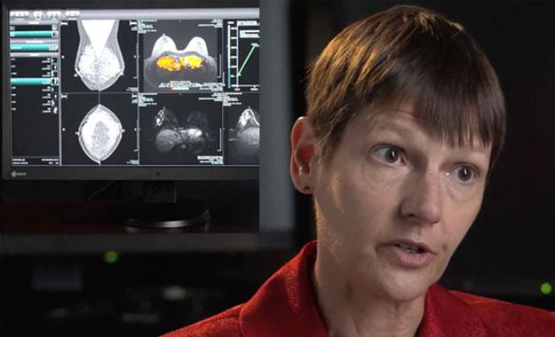 RadiForce - Color Mammography Medical Monitors