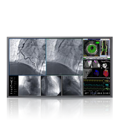 Surgery & Endoscopies: High-speed imaging for endoscopy, surgery, cardiac imaging and ultrasound